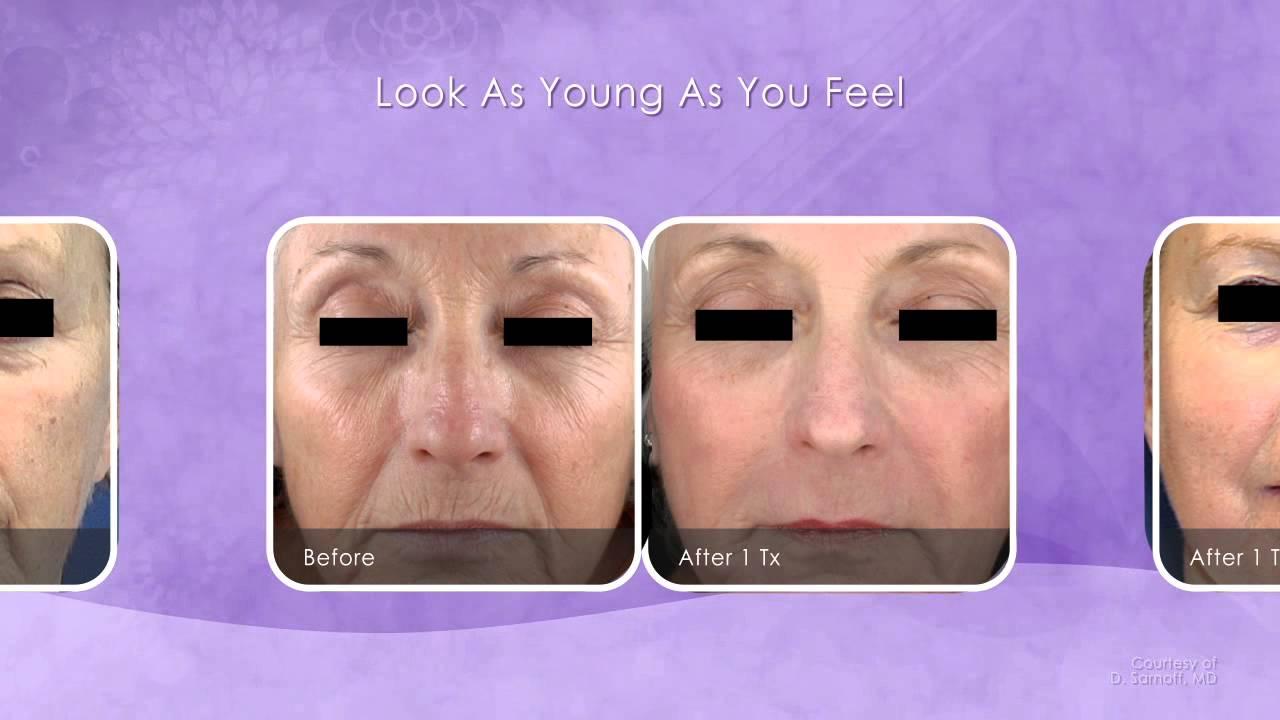 Laser Skin Resurfacing Bellevue, Laser Skin Rejuvenation Seattle