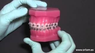 Brackets Damon | Ortom Ortodoncia Madrid