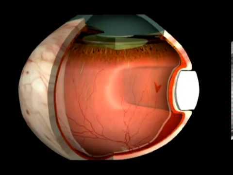 Детское восстановление зрения