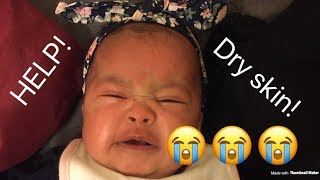 How To Get Rid Of Dry Skin On Baby? | MOM VLOG