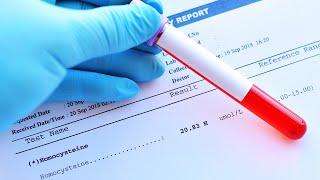 Jak obniżyć poziom homocysteiny, zanim zniszczy Twoje zdrowie. Zrób badanie poziomu już dziś.