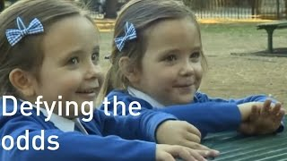Conjoined twins 'really excited' to start school four years after separation surgery