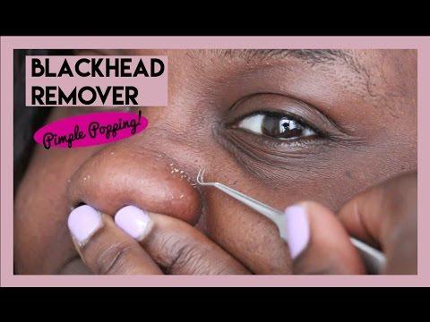Satisfying Blackhead Extraction