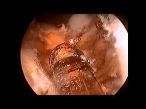 Il cancro della prostata di imaging
