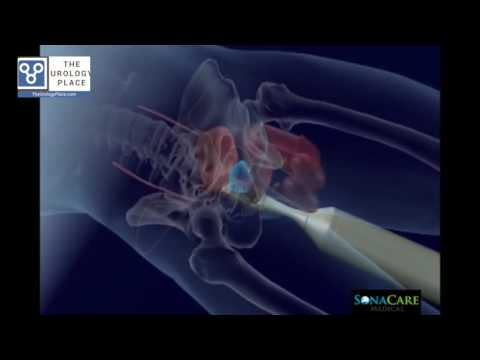 HIFU for Prostate Ablation