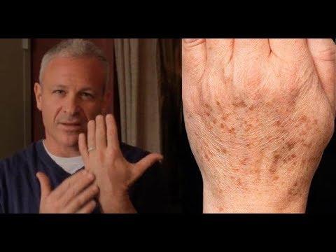Что от нас скрывают/ Простой способ быстрого удаления пигментных пятен на коже