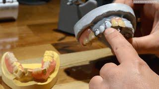 Zahnprothesen mit Kunststofftechnik