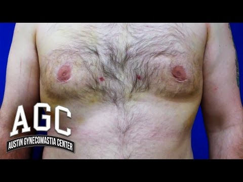 Educational Video: 7 Days After Surgery – Gyno Treatment