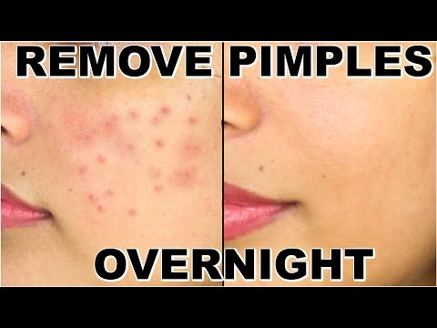 Video How To Remove Pimples Overnight | Acne Treatment | ShrutiArjunAnand