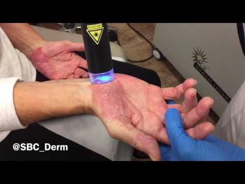 Die Rezensionen über die Behandlung in iordanii von der Schuppenflechte