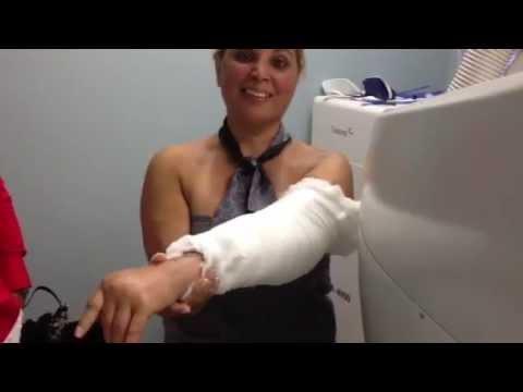 Total Elbow Replacement Surgery Outpatient Procedure