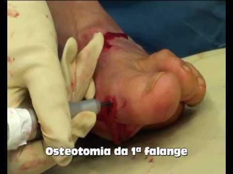 วิดีโอการผ่าตัด hallux valgus