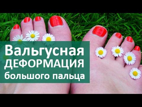 👣 Вальгусная деформация большого пальца стопы. Лечение вальгусной деформации в ЦЭЛТ.