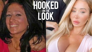I've Spent $100K On My Plastic Surgery Transformation | HOOKED ON THE LOOK