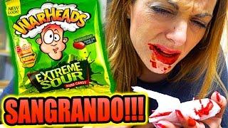 WARHEADS LOS MAS ÁCIDOS DEL MUNDO!!! SANGRANDO!!!! ·VLOG·