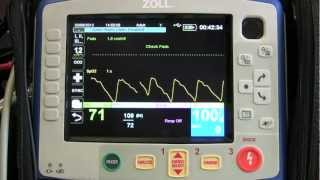 Instruction Of The Zoll X Series - Part 2 (NIBP And SpO2/SpCO)