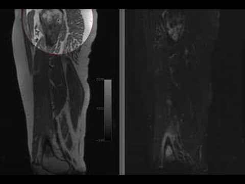 Tratament cu citostatice cancer pulmonar