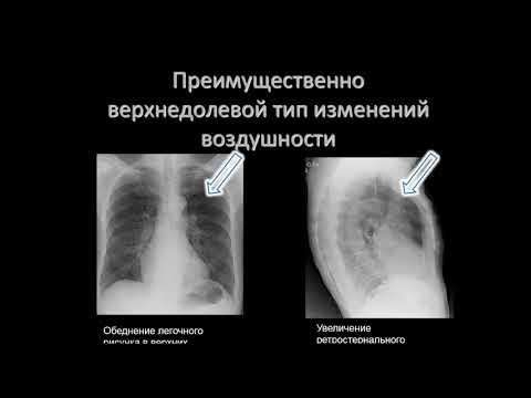 Лукина О.В.«Стандарты диагностики ХОБЛ»