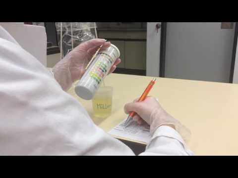 Urin-Teststreifen