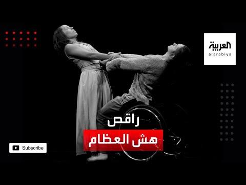 العرب اليوم - شاهد: رغم هشاشة عظامه يرفض التوقف عن الرقص