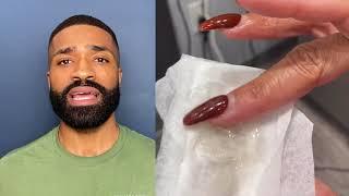 APPLY THIS!!! Put A STOP To Razor Bumps For Sensitive Skin | Week 8 Black Men's Beard Journey