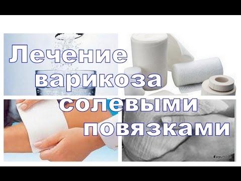 Солевые повязки при варикозе лечение солью. AyurClub