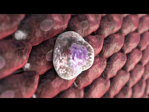 Cahors nel cancro alla prostata