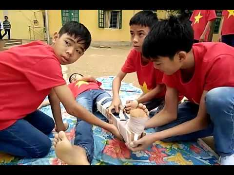 Kỹ thuật sơ cứu gãy xương cẳng chân HS THCS Hà Thạch TX Phú Thọ