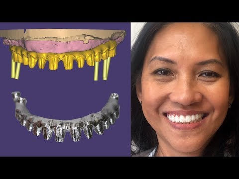 The Most Difficult Full Mouth Implant Case | Part 1