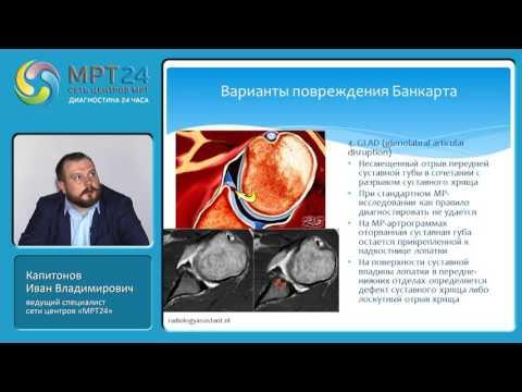 """""""МРТ-диагностика травм и патологий плечевого сустава"""", Капитонов Иван Владимирович."""