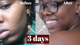 HOW I CLEARED TINY BUMPS/ RASHES ON MY FACE || CLEAR ROUGH AND TEXTURED SKIN  - SKINCARE ROUTINE