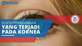 Keratitis, Suatu Peradangan atau Inflamasi yang Terjadi pada Kornea Mata