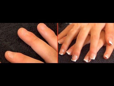 El tratamiento medicamentoso del hongo de las uñas de los pies