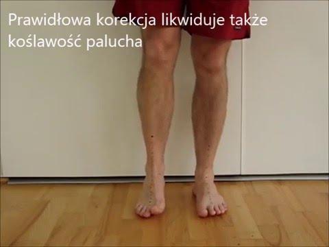 Ból kości nogi od stóp do kolan