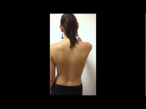 Chirurgia della colonna vertebrale cervicale in prezzi San Pietroburgo