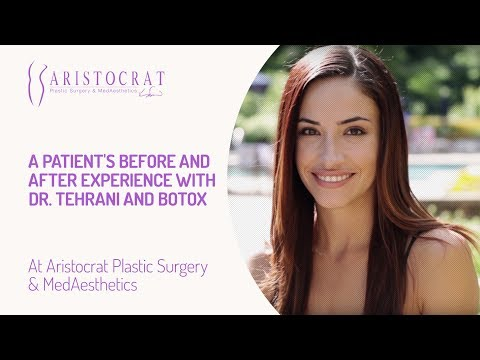 A Patient's Before and After Experience with Dr. Tehrani and BOTOX