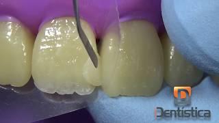 Restauração de dente anterior fraturado