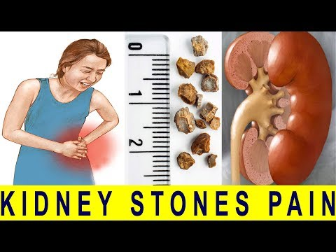 How to pass kidney stones quickly with this natural remedy | Natural Health is Wealth