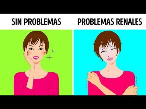 10 Síntomas Que Indican Problemas Renales