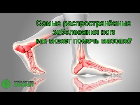 Самые распространённые заболевания ног:  Как может помочь массаж?