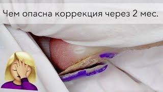 Отслойки на нарощенных ногтях. Как исправить?