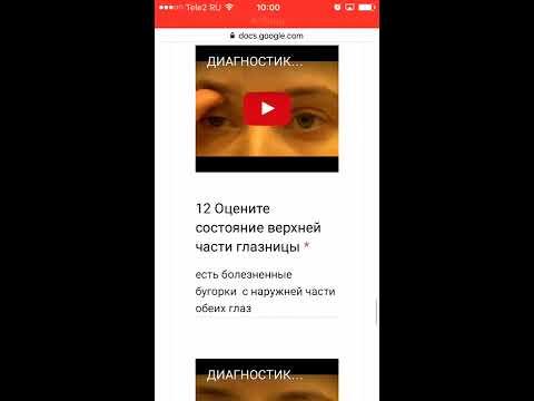 Операция восстановления зрения в новосибирске