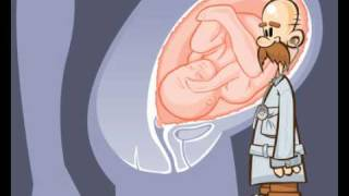 GRAVIDANZA documentario cartoon