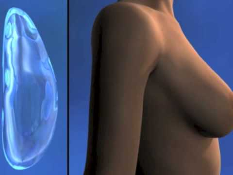 Las revocaciones del plástico del pecho inferior novgorod