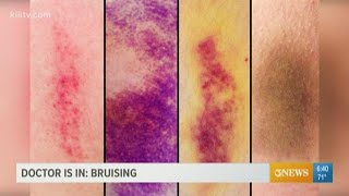Why bruising matters and what the purple, blue, and yellow marks can indicate