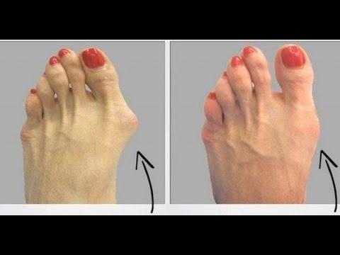 El tratamiento del hongo de los talones en los pies por las medicinas