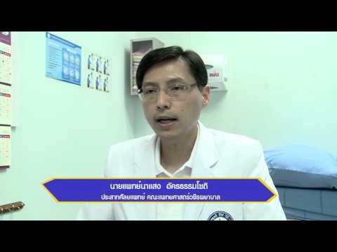 การรักษา sclerotherapy เส้นเลือดขอด