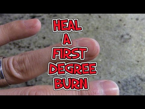 Video How To Heal A First Degree Burn