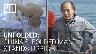 China's 'folded man' finds happiness on road to recovery after complicated surgeries