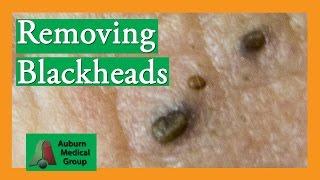 Removing Blackheads (Popping) | Auburn Medical Group